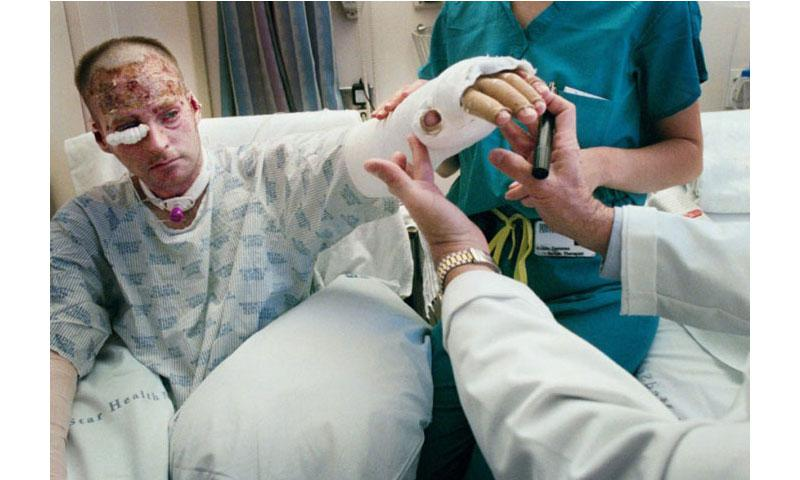 Lt. Col. Brian Birdwell shows his cast to Marion Jordan and physical therapist Kristen Dammen at Washington Hospital Center burn unit. Birdwell was badly burned while working at the Pentagon on Sept. 11, 2001. (The Washington Post)